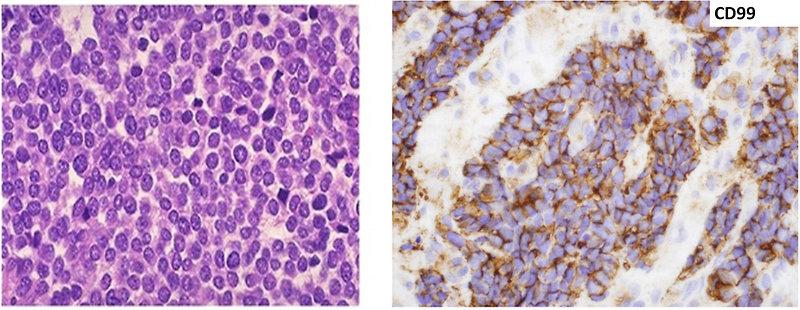 Pediatric Oncology Ewing Sarcoma Pnet Family Tumors