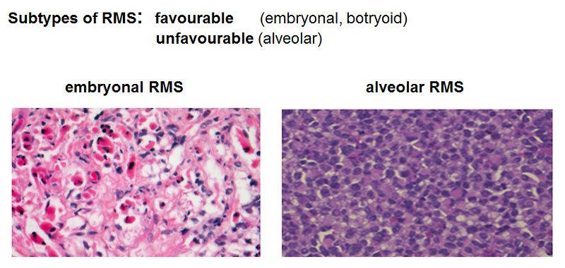 Pediatric Oncology Soft Tissue Sarcomas