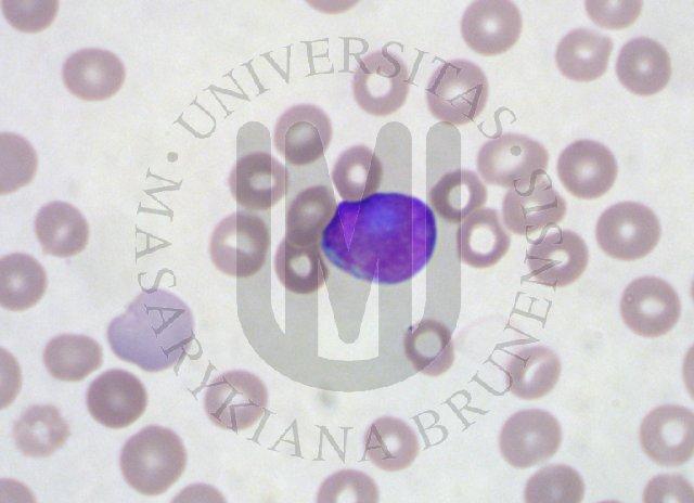 Telehematology: AML- peripheral blood